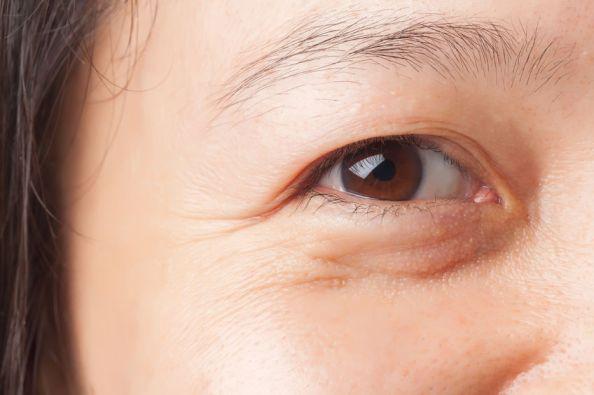 Dùng kem dưỡng mắt như thế nào cho đúng?